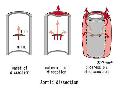 aortic dissection progression