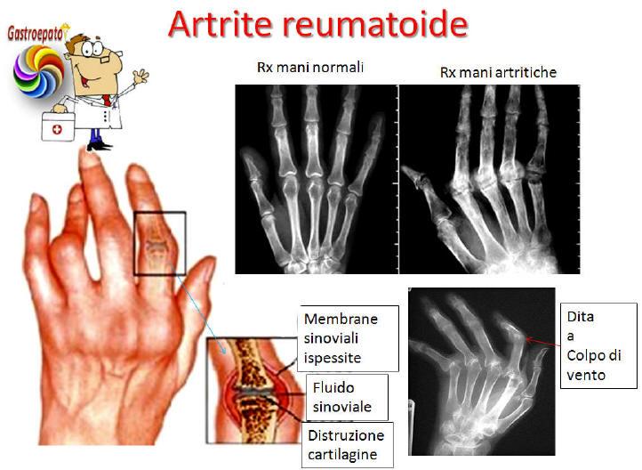 Fattore Reumatoide