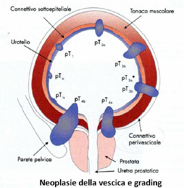 papilloma vescicale invertito)