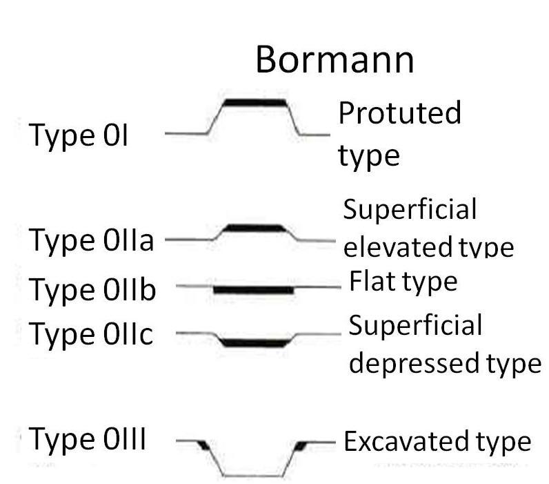 gastric cancer bormann)