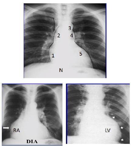 Ipertensione arteriosa e danno d'organo: marker di danno