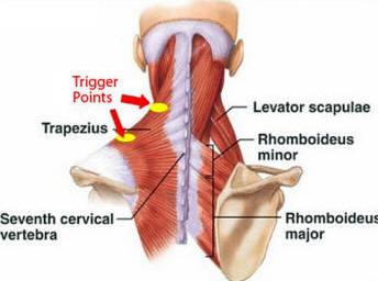 Dolore ai lipidi e debolezza muscolare. Angina pectoris | Auxologico