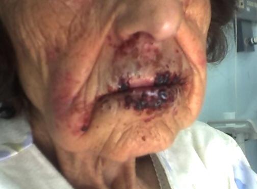 Infezione da Herpes labialis