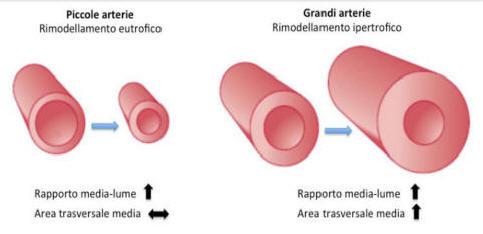 Ipertensione renovascolare