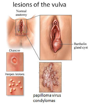 normal picture Vulva