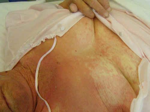 Paziente affetta da eruzione orticariode da farmaci, con aspetto a carta geografica sul petto, da un nostro caso clinico