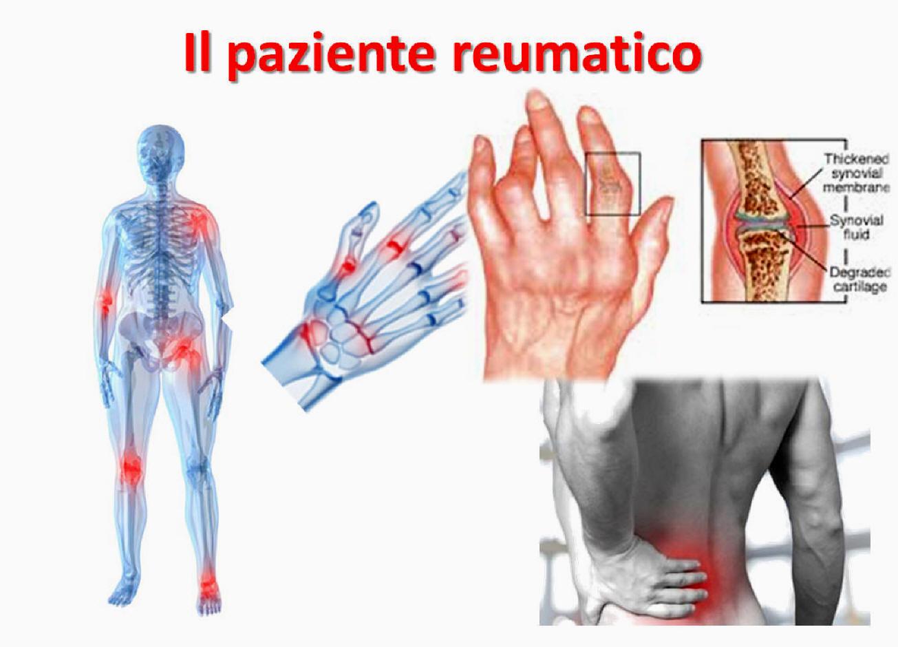 Dolori alle articolazioni: cause, sintomi e cura